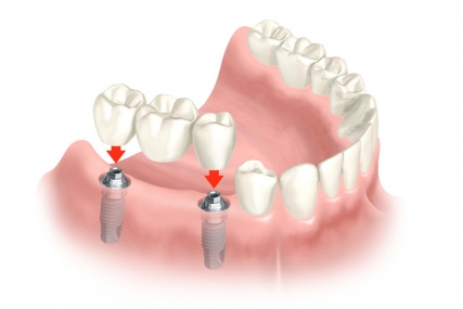 Implant Dentistry - Multiple Teeth Replacement