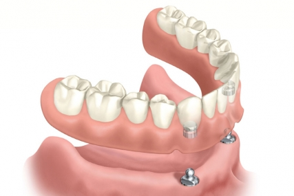 Implant Dentistry - Whole Arch Replacement
